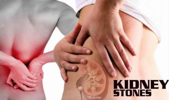 Relieving Herbal Tea For Kidney Stones Perfect Health At